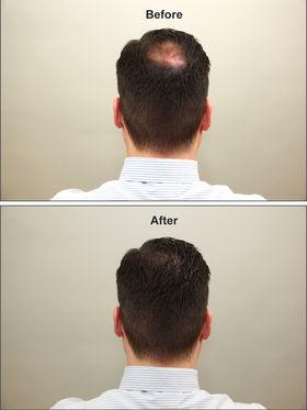 Looks21 Hair Loss Concealer - Black or Brown
